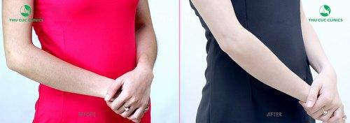 Hình ảnh khách hàng rtước và sau khi triệt lông bằng Laser Diode (Lưu ý: Hiệu quả thẩm mỹ còn tùy thuộc vào cơ địa của mỗi người).