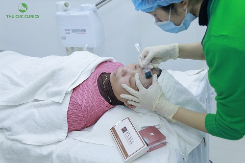 Kỹ thuật viên kết hợp lăn vi kim và đưa P'cell vào sâu trong da, giúp tái tạo da hoàn hảo.
