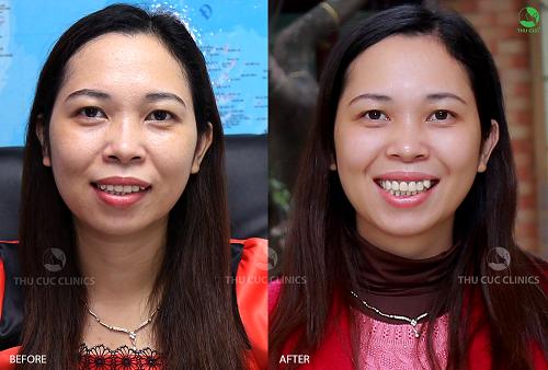 Khách hàng Bích Vân (40 tuổi, Thành phố Bắc Ninh) sở hữu làn da sáng mịn không nếp nhăn sau khi ứng dụng công nghệ tế bào gốc tại Thu Cúc Clinics.
