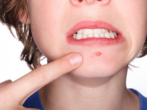 Khi lỗ chân lông bị tắc và nhiễm trùng sẽ hình thành mụn viêm.
