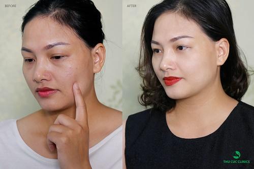 Hình ảnh Chị Vân Anh (nhân viên văn phòng - Hà Nội) trước và sau khi trị sẹo bằng công nghệ tế bào gốc P'cell.