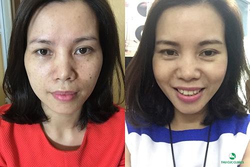 Chị Phương Thảo sử dụng công nghệ Laser YAG tại Thu Cúc để điều trị nám da và tàn nhang trên gương mặt mình.
