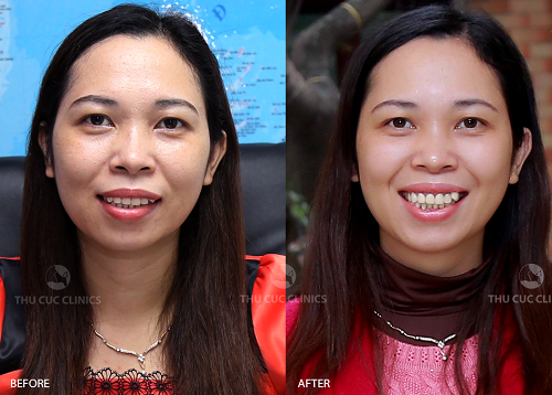 Làn da của chị Bích Vân (Hà Nội) như được tái tạo và trở nên cămg mịn, sáng sau khi trải nghiệm dịch vụ làm đẹp P'cell Thu Cúc Clinics.