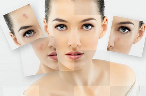 Vết thâm xuất hiện trên da gây ảnh hưởng lớn tới sự tự tin của phái đẹp.