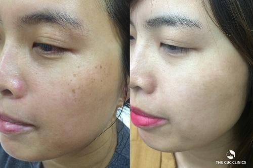 Làn da của Hương Trâm trước vàsau khi trị tàn nhang thành công tại Thu Cúc Clinic (Lưu ý: kết quả có thể khác nhau tùy vào cơ địa của mỗi người).