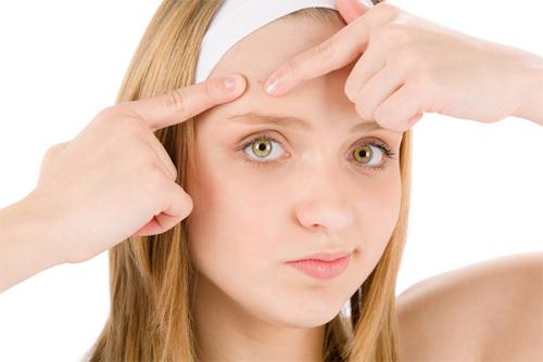 Tự nặn mụn có thể khiến tình trạng trở trầm trọng hơn và để lai những vết thâm sẹo trên da.