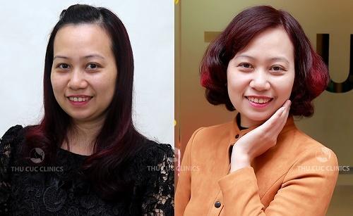 Hình ảnh chị Minh Tuyết (35 tuổi) trước và sau khi trẻ hóa da bằng công nghệ tế bào gốc P'cell.