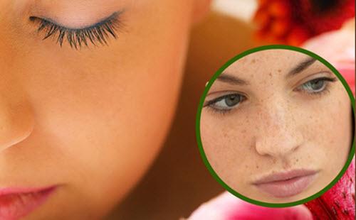 Đốm tàn nhang có hình tròn, màu nâu sẫm làm mất thẩm mỹ làn da.