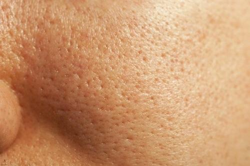 Lỗ chân lông to khiến da sần sùi thô ráp làm mất thẩm mỹ làn da