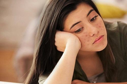 Vết thâm là tình trạng thường gặp sau khi tự điều trị mụn