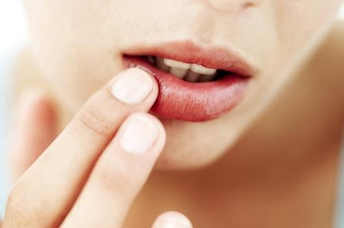 Rất nhiều chị em sử dụng kem trị thâm môi hàng ngày.