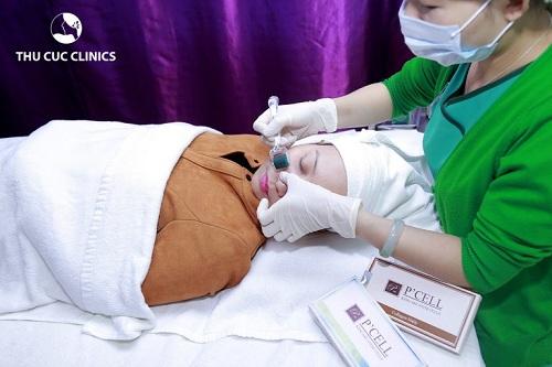 Khách hàng điều trị lỗ chân lông to ở mặt tại Thu Cúc Clinics.