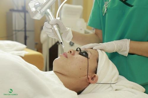 Trị nám da bằng Laser YAG Q-Swithced tại Thu Cúc Clinics.