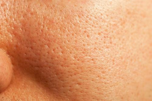 Công thức mặt nạ dưới đây phù hợp tình trạng da có lỗ chân lông to.