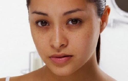 Thiếu ngủ là lý do phổ biến khiến mắt thâm đen mệt mỏi.