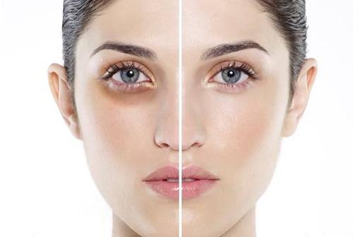 sử dụng dịch vụ trị thâm quầng mắt tại Thu Cúc Clinics giúp xóa tam như