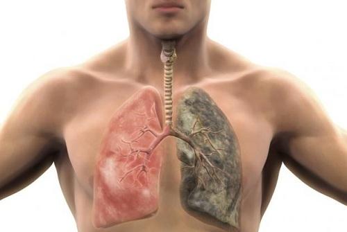 Những người mắc bệnh phổi môi thường bị thâm đen