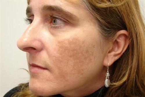 Nám - vấn đề thẩm mỹ da thường gặp ở phụ nữ tuổi trung niên