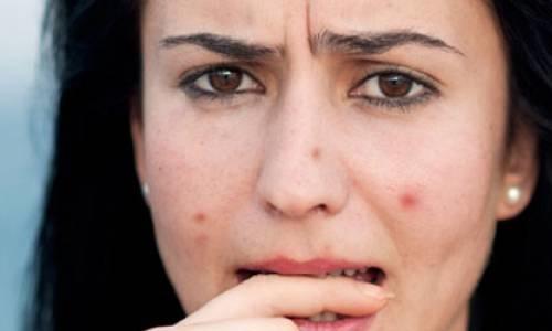 Những Lưu Ý Khi Sử Dụng Vitamin E Để Trị Vết Thâm