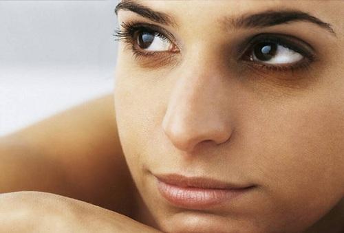Vùng da mắt rất dễ bị tổn thương và bị thâm đen.
