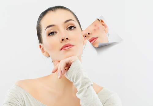 Nặn mụn sai cách là nguyên nhân dẫn đến sẹo mụn bọc