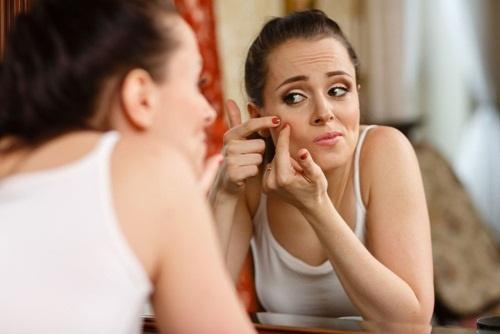 Nặn mụn có thể khiến da bị viêm nhiễm và tổn thương trầm trọng hơn.