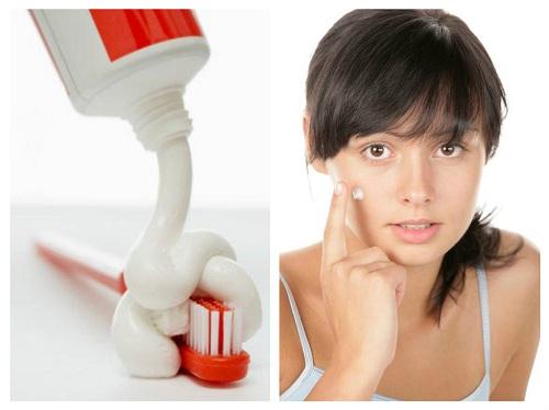 Nhiều chị em lựa chọn cách trị mụn bằng kem đánh răng để lấy lại làn da sáng mịn