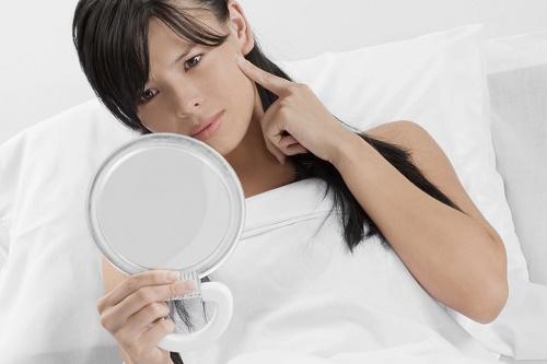 Thay đổi nội tiết tố khiến mụn xuất hiện nhiều trong thai kỳ.
