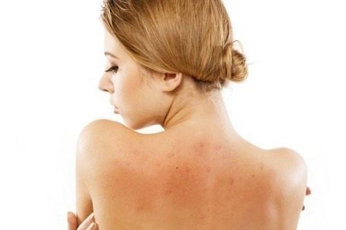 Lưng trần sẽ bớt quyến rũ hơn khi bị mụn tấn công.