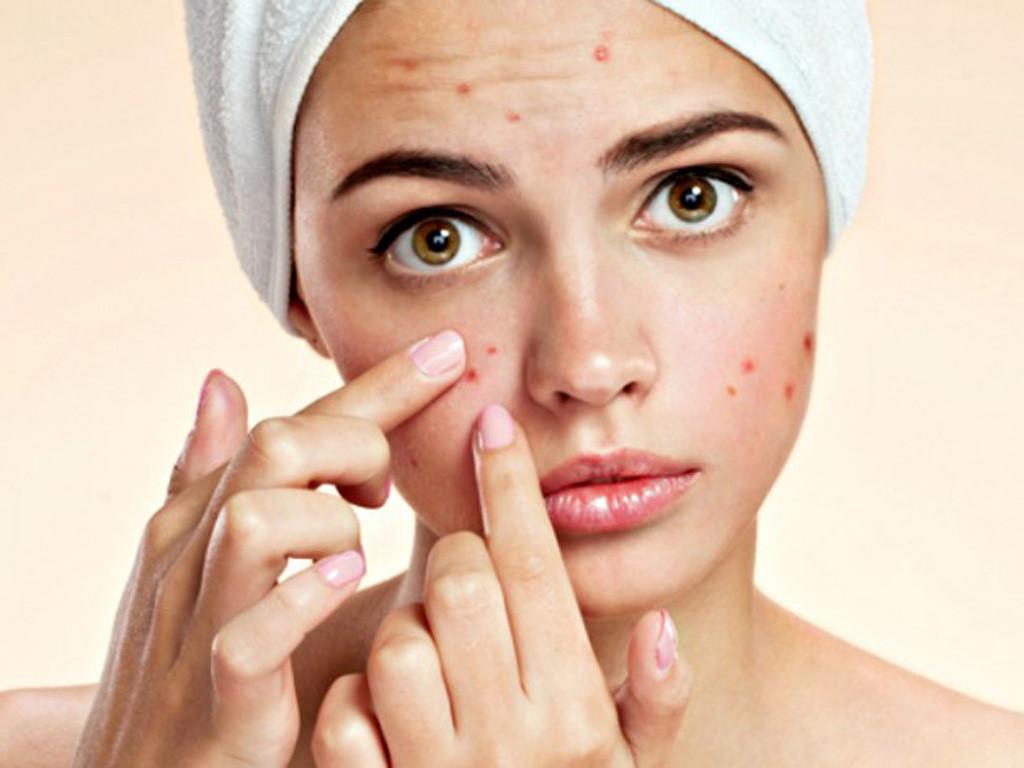 Mụn xuất hiện trên da mang đến nhiều phiền toái, không được điều trị đúng cách sẽ để lại hệ lụy lâu dài