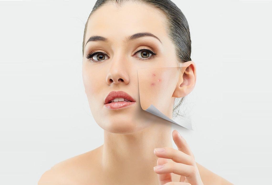 Mụn xuất hiện trên da không kể tuổi tác, thời gian hay thời tiết
