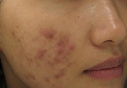 Nếu không kiểm soát, mụn sẽ trở nên nghiêm trọng và để lại những vết thâm sẹo trên da.