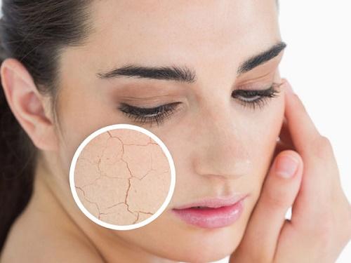 Làn da khô ráp sẽ nhanh bị lão hóa hơn