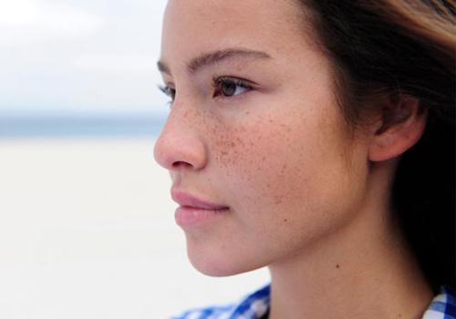 Nám da thường phát triển mạnh vào mùa hè và mang đến không ít phiền toái