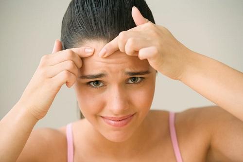 Trong quá trình trị mụn chị em không nên cạy, nặn, giúp hạn chế khả năng viêm nhiễm