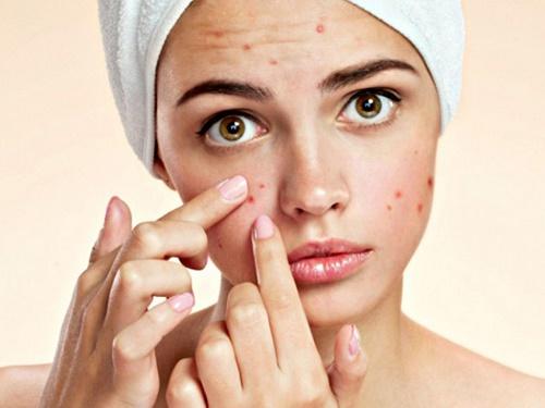 Nặn mụn bọc không đúng cách sẽ để lại các vết thâm, sẹo trên da.