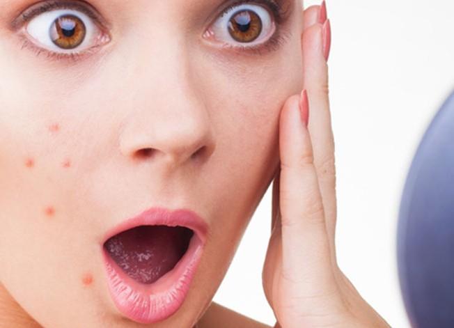 Da nổi mụn do dị ứng mỹ phẩm là tình trạng không hiếm gặp