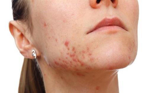 Khi da bị kích ứng bởi các vật tiếp xúc, vê lâu dài mụn bọc sẽ lan rộng và khó kiểm soát.