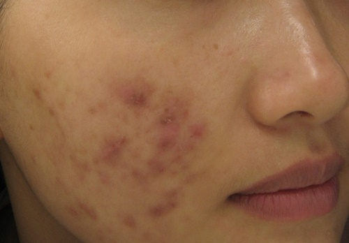 Da bị thâm, mụn sau một thời gian tắm trắng da mặt tại spa không uy tín.