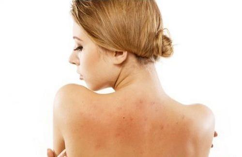 Mụn ở lưng có thể là do yếu tố cơ địa, di truyền.