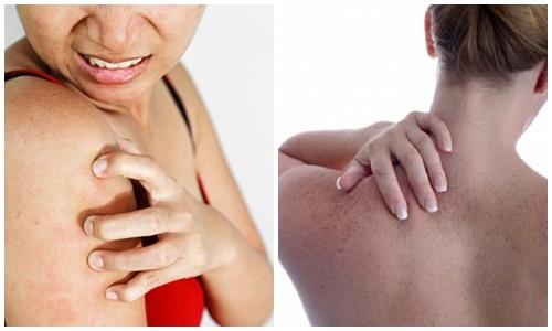 Làn da có thể bị nổi mẩn, bong tróc do dị ứng với các thành phần thô có trong nguyên liệu tự nhiên.