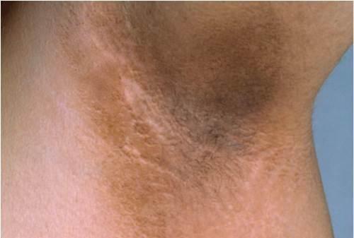 Cạo lông nách thường xuyên sẽ khiến vùng da dưới cánh tay thâm sạm sần sùi mất thẩm mỹ