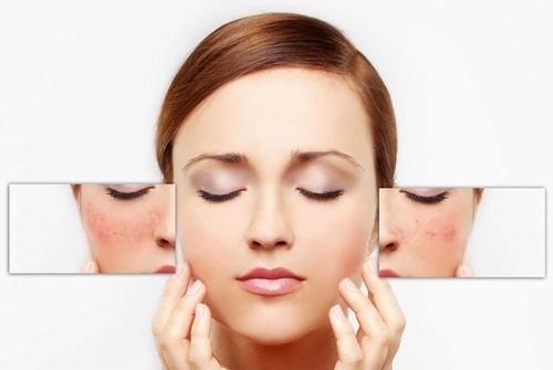 Vùng chữa T của loại da hỗn hợp thường xuất hiện mụn và nếp nhăn
