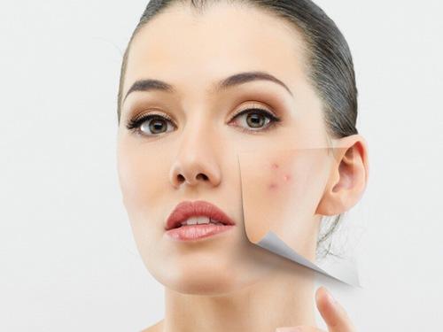 Các giải pháp điều trị tại nhà hiệu quả nhất là khi da đã lành tổn thương sau mụn và vết thâm chưa ăn sâu vào da.