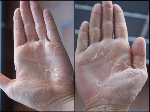 Da bong tróc do sử dụng bột tắm trắng trôi nổi trên thị trường.