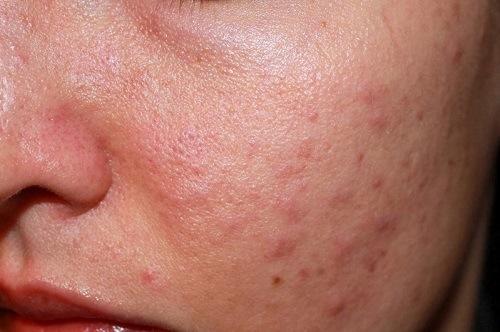 Cạo lông mặt không đúng cách dễ gây ra tinh trạng viêm lỗ chân lông