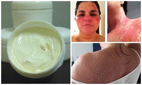 Làn da bong tróc, lở lói do lột tẩy da bằng hóa chất.