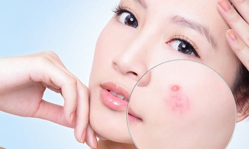 Nếu làn da đang bị mụn tấn công, hãy cẩn trọng khi sử dụng các sản phẩm dưỡng trắng.