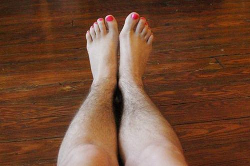 Đôi chân rậm lông khiến các chị em ngại ngùng khi mặc váy hoặc quần sooc.
