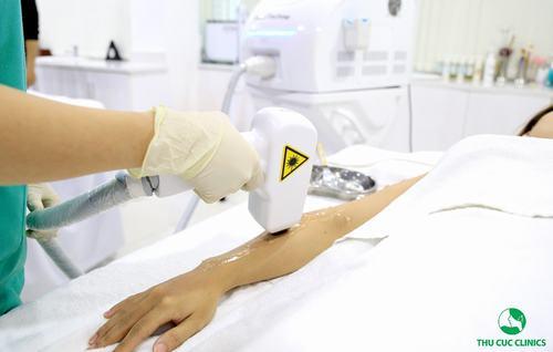 Laser Diode là giải pháp triệt lông được nhiều người tin dùng